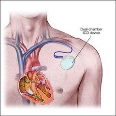 Имплантируемый кардиовертер-дефибриллятор