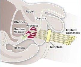 Лечение бак простатита